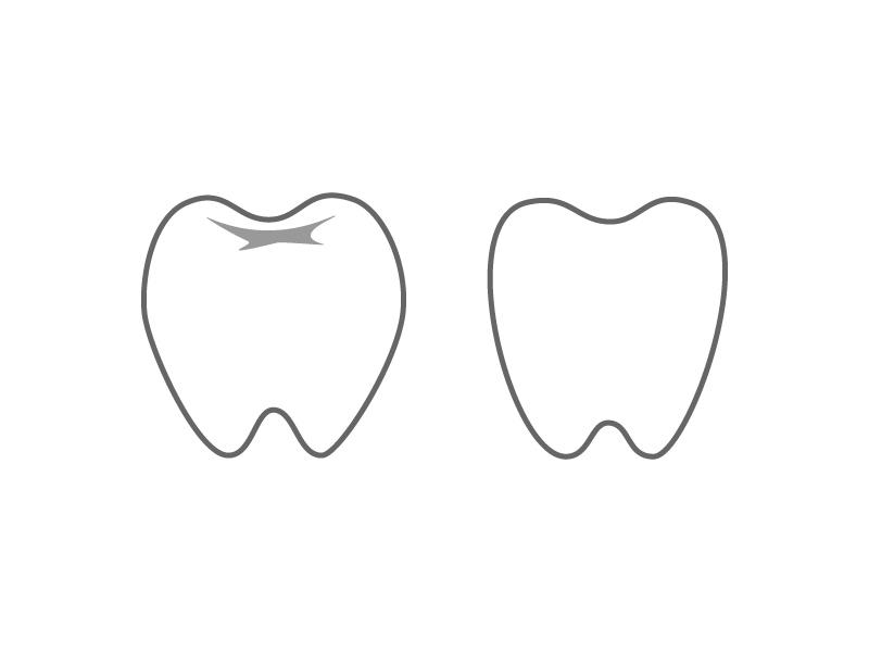 歯・奥歯イラスト素材01