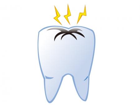 虫歯がジンジンと痛いイメージのイラスト素材