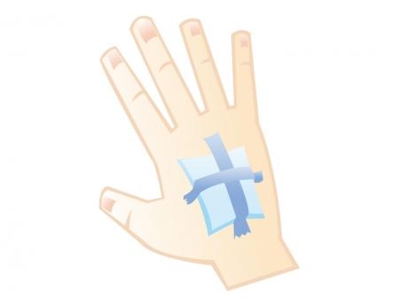手の甲に怪我をしてガーゼをあてているイラスト